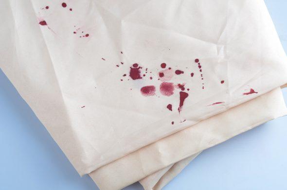 Пятна от крови на одежде