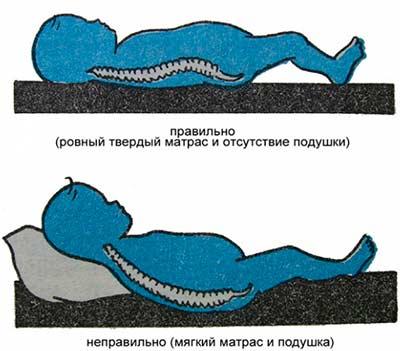 Положение во время сна