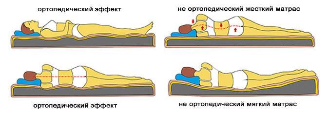 выбрать ортоподушку